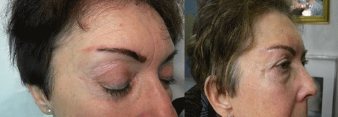 Detatouage Les Rates Removing Microblading Maquillage Permanent